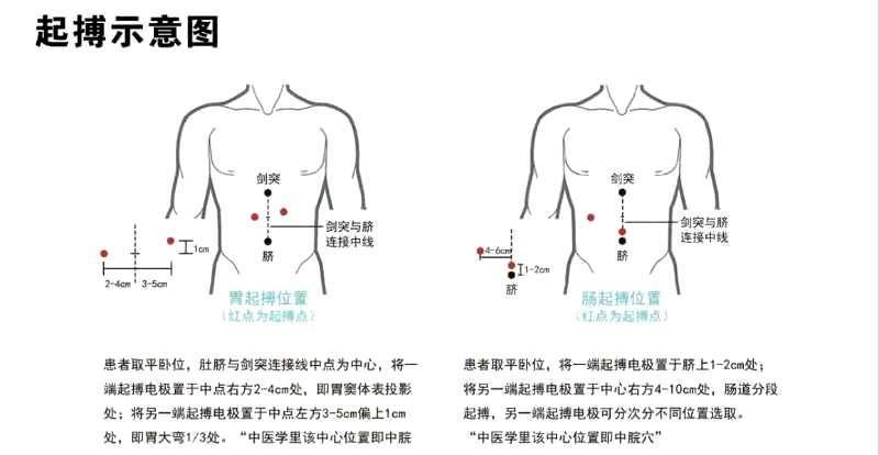 天水初鸿胃肠动力、初鸿胃肠动力系统方案、初鸿胃肠动力(商家)